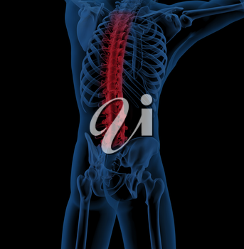 3D render of a male medical skeleton with the spine highlighted indicating back pain