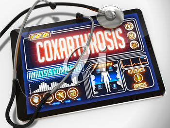 Coxarthrosis - Diagnosis on the Display of Medical Tablet and a Black Stethoscope on White Background.