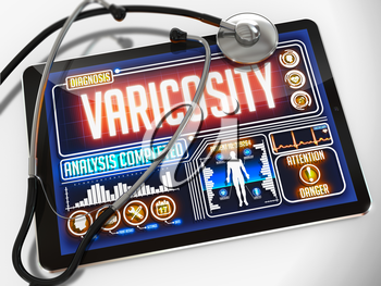 Varicosity - Diagnosis on the Display of Medical Tablet and a Black Stethoscope on White Background.