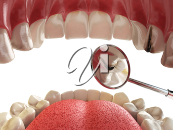 Human tooth with cariesand hole and tools. Dental searching concept. Teeth or dentures. 3d illustration