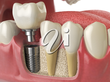 Anatomy of healthy teeth and tooth dental implant in human dentura. 3d illustration
